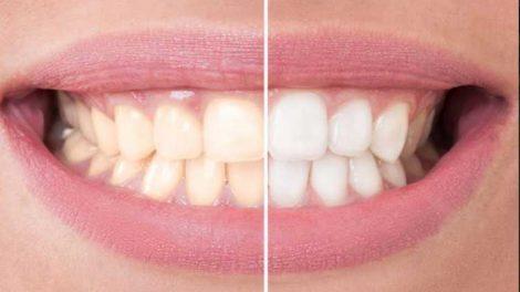 दातांचा पिवळेपणा